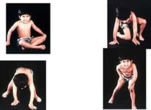 Duchenne Musküler Distrofi Tedavisi